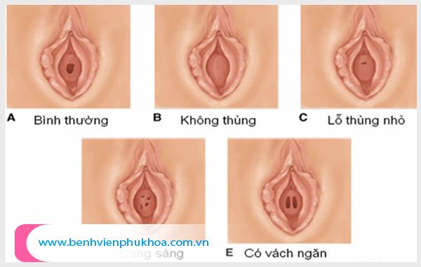 Hình ảnh màng trinh bình thường trông như thế nào?