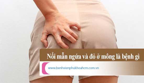 Các nguyên nhân dẫn đến tình trạng nổi mẫn ngứa ở kẻ mông phụ nữ